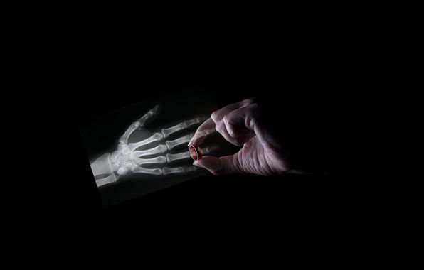 Картинка рука, кольцо, кости
