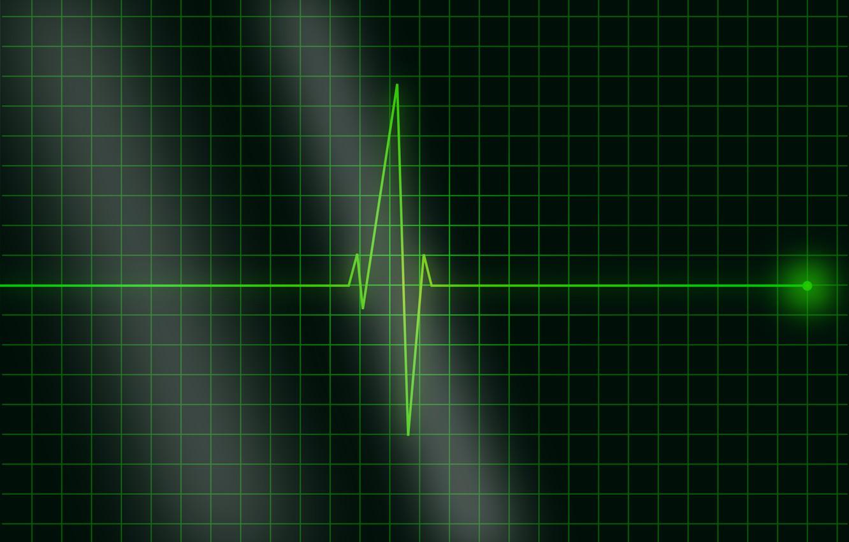 Нормальная частота пульса — Сердце